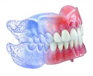 digitale-gebitsprothese